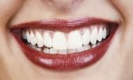 Namirnice koje zamenjuju četkicu za zube